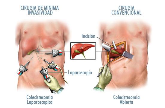 Colecistectomia de Minima Invasividad en Dominicana