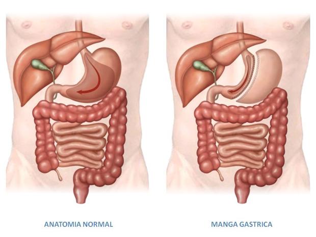 gastrectomia en manga en rep. dominicana